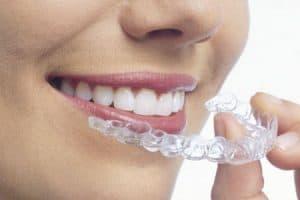 Ortodoncia Invisalign sin brackets