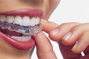 Ortodoncia para mostrar menos encía