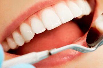 Es importante conocer los cuidados de la boca
