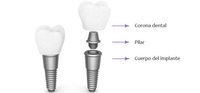 Cuerpo, pilar y corona dental