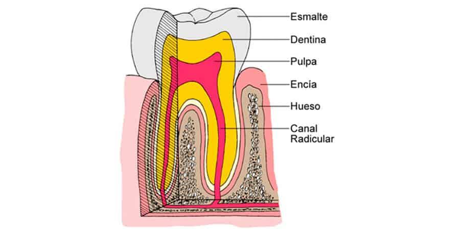 Pulpitis dental: tratamientos y causas de su aparición