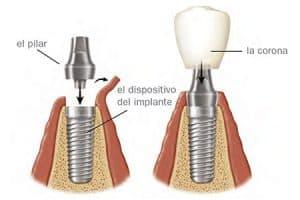 Componentes de los implantes