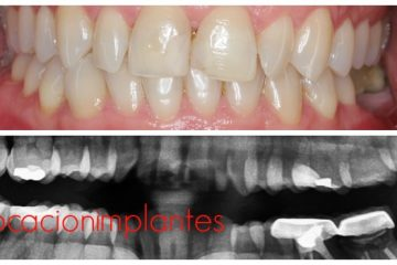 colocacion de implantes dentales paso a paso
