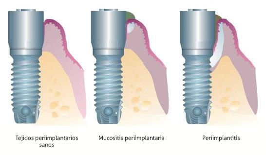 Enfermedad implantes