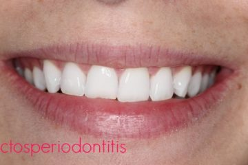 efectos tratamiento periodontal
