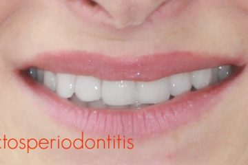 efectos de la periodontitis en la pulpa dental