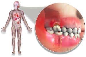 Enfermedad de periodonto y enfermedades sistémicas