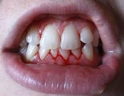 periodontitis mujer