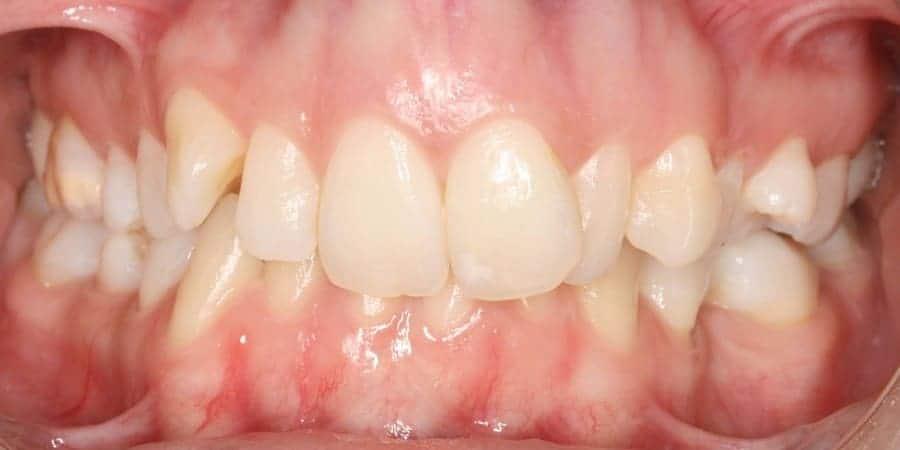 Dentes encavalados