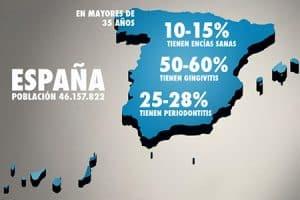 Población en España con piorrea o gingivitis