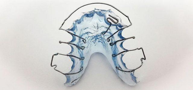 Retenedores de ortodoncia para niños