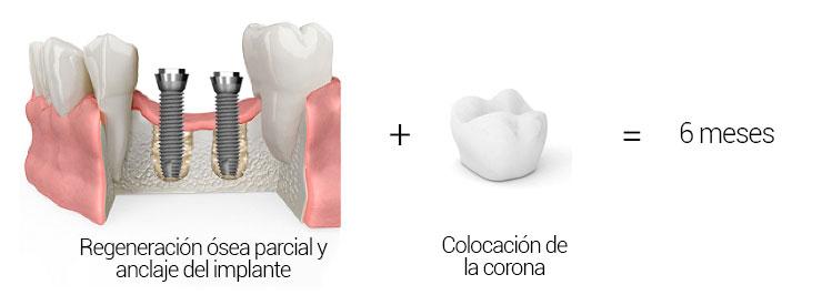 Regeneración ósea parcial