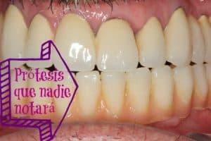 implantes dentales para toda la boca