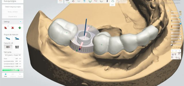 Software en 3D para colocar implantes