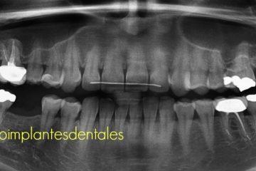 precio implantes dentales madrid