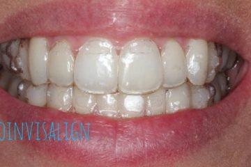 precio ortodoncia invisalign