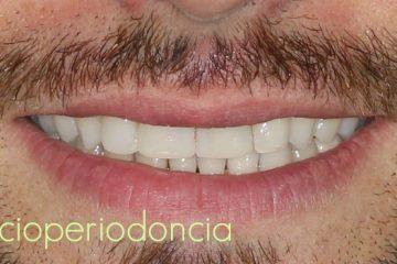 periodoncia precio tratamiento