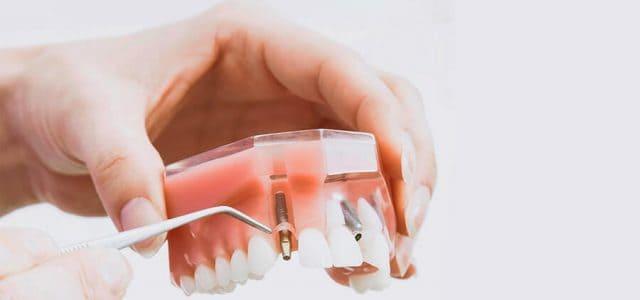 Expertos en implantología