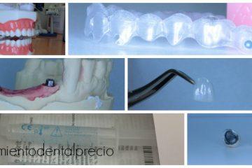 precios tratamientos dentales Madrid