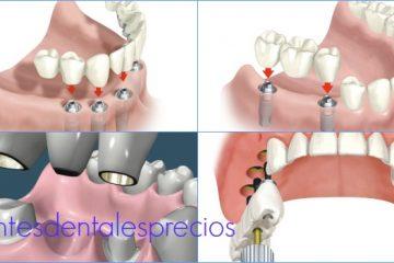 precio de un puente dental madrid