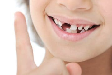 Cómo quitar un diente de leche sin dolor