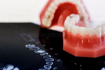 presupuesto ortodoncia invisalign