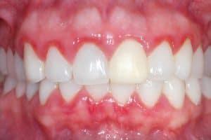 Enfermedades periodontales por hipoplasia