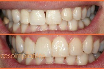 proceso implantes dentales de titanio