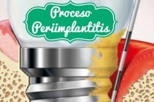periimplantitis que es