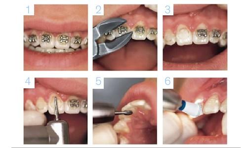 C mo se quitan los brackets es doloroso el proceso - Como alinear los dientes en casa sin brackets ...