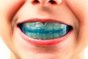 Cómo prevenir la avulsión dental