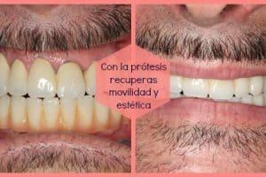 protesis dental completa precio