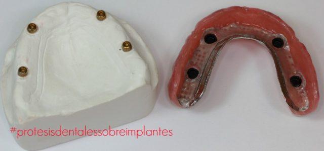 Prótesis Dentales Sobre Implantes Tipos Y Ventajas