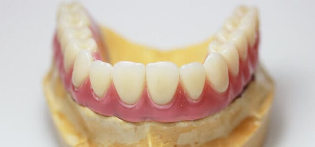 Recuperar toda la dentadura
