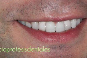 protesis dientes temporales