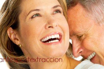 colocación implantes post extraccion