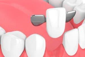 Puentes dentales Maryland