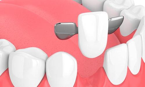 Puentes dentales: ¿son mejores que los implantes?   Ferrus&Bratos