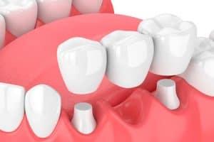 Puente dental más común