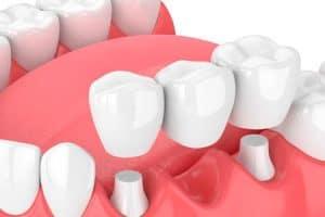 Puentes dentales sobre dientes