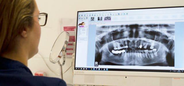 Radiografía de una dentadura