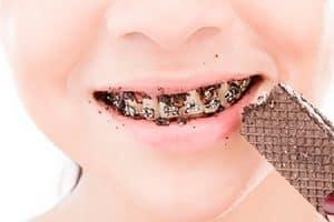 Qué puedes comer si llevas ortodoncia