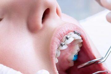 Causas y tratamiento del prognatismo
