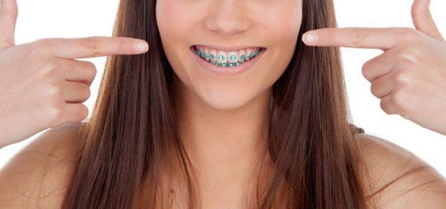 Tipos de ortodoncia sin brackets