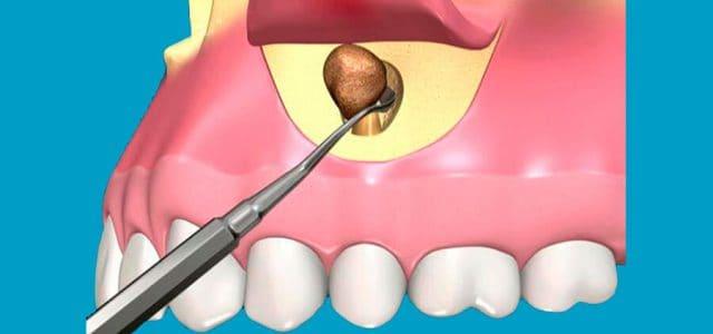 La picectomía elimina la infección