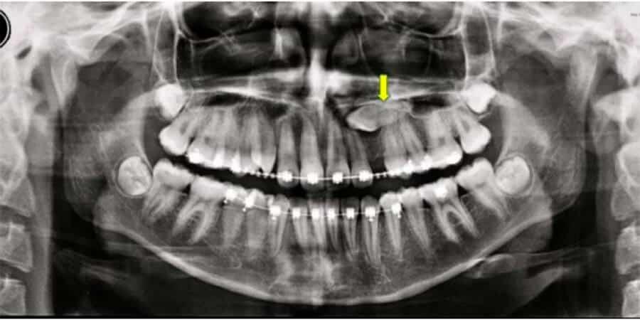 Tratamientos efectivos para corregir los dientes incluidos