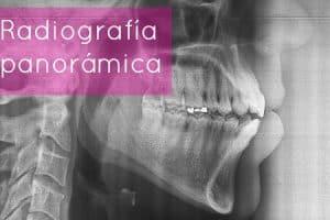 panoramica ortodoncia