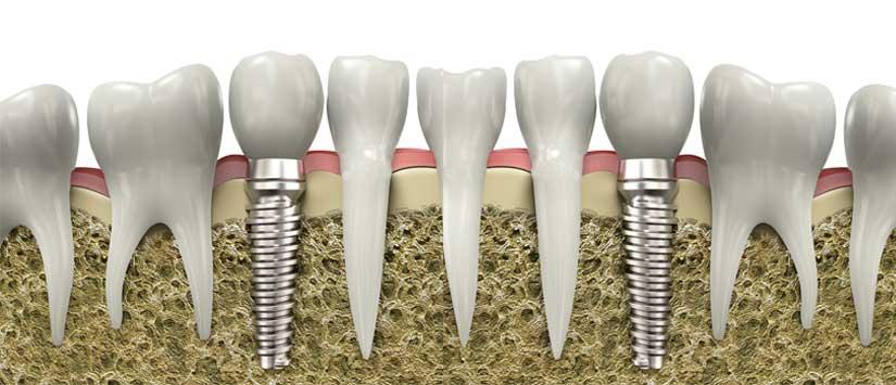 Implantes tras extracción