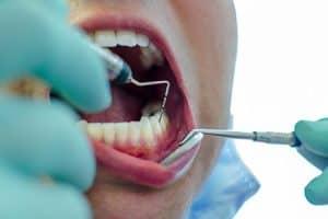 Curetajes por periodontitis