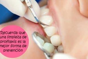 raspado encias dental
